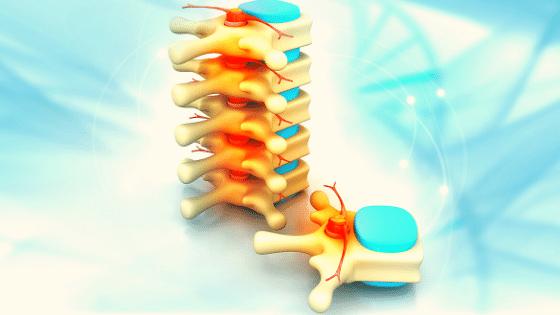 5Medical-Billing-Coding tips-Spine-Surgery